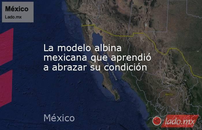 La modelo albina mexicana que aprendió a abrazar su condición. Noticias en tiempo real