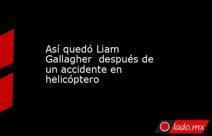 Así quedó Liam Gallagher  después de un accidente en helicóptero. Noticias en tiempo real